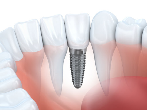 dental implant between teeth