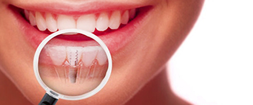 dental implant importance