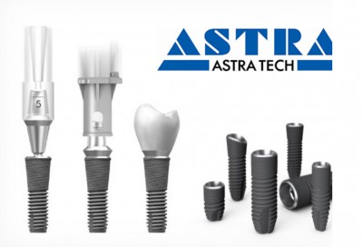 Astra Tech dental implants