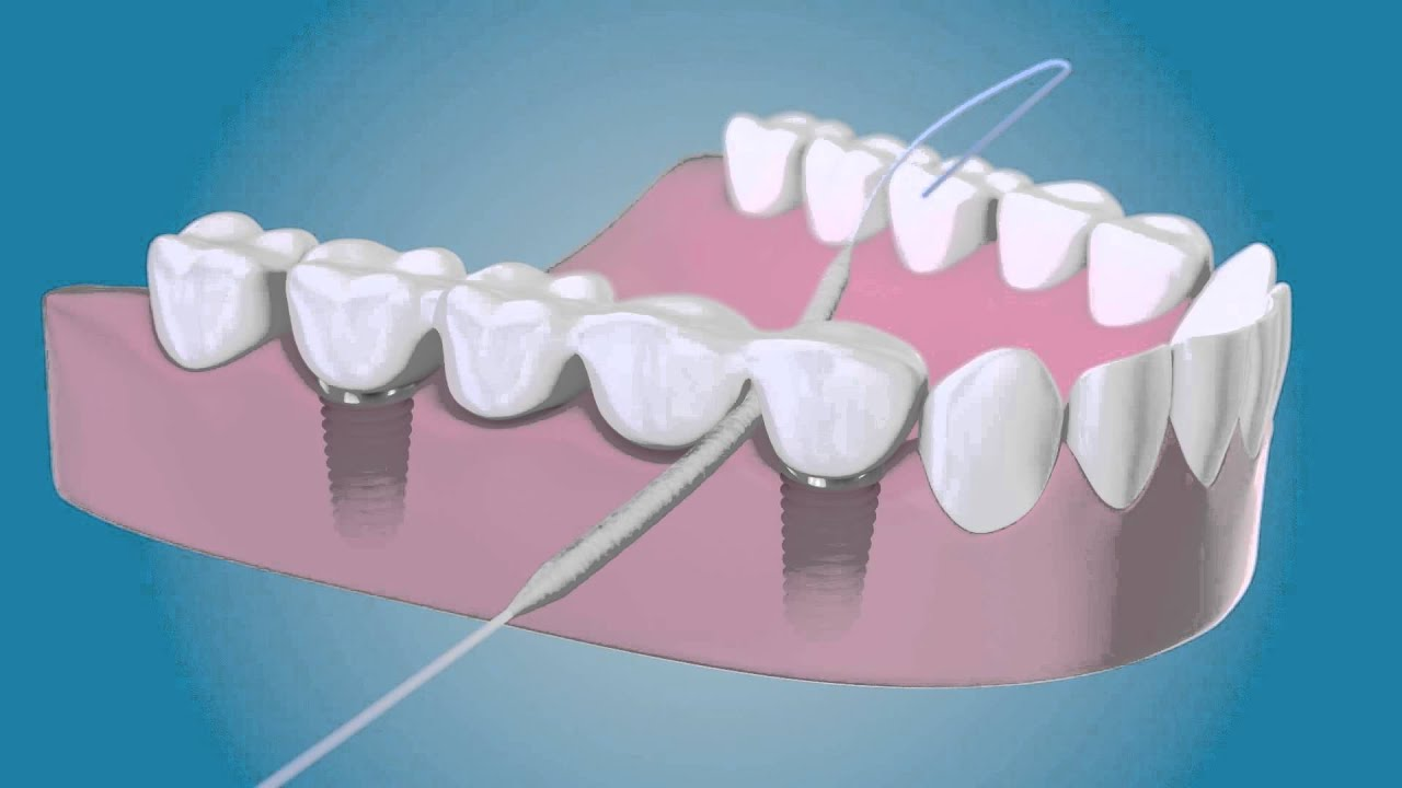 Dental implants care