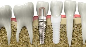 Titanium, zirconia Implants
