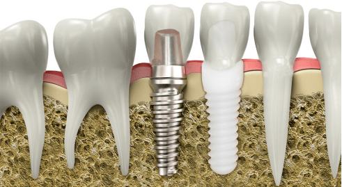 Titanium, zirconia Implants