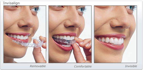 Invisalign braces stages of treatment