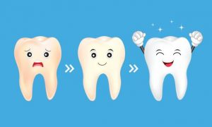 Importance Of Professional Teeth Cleaning