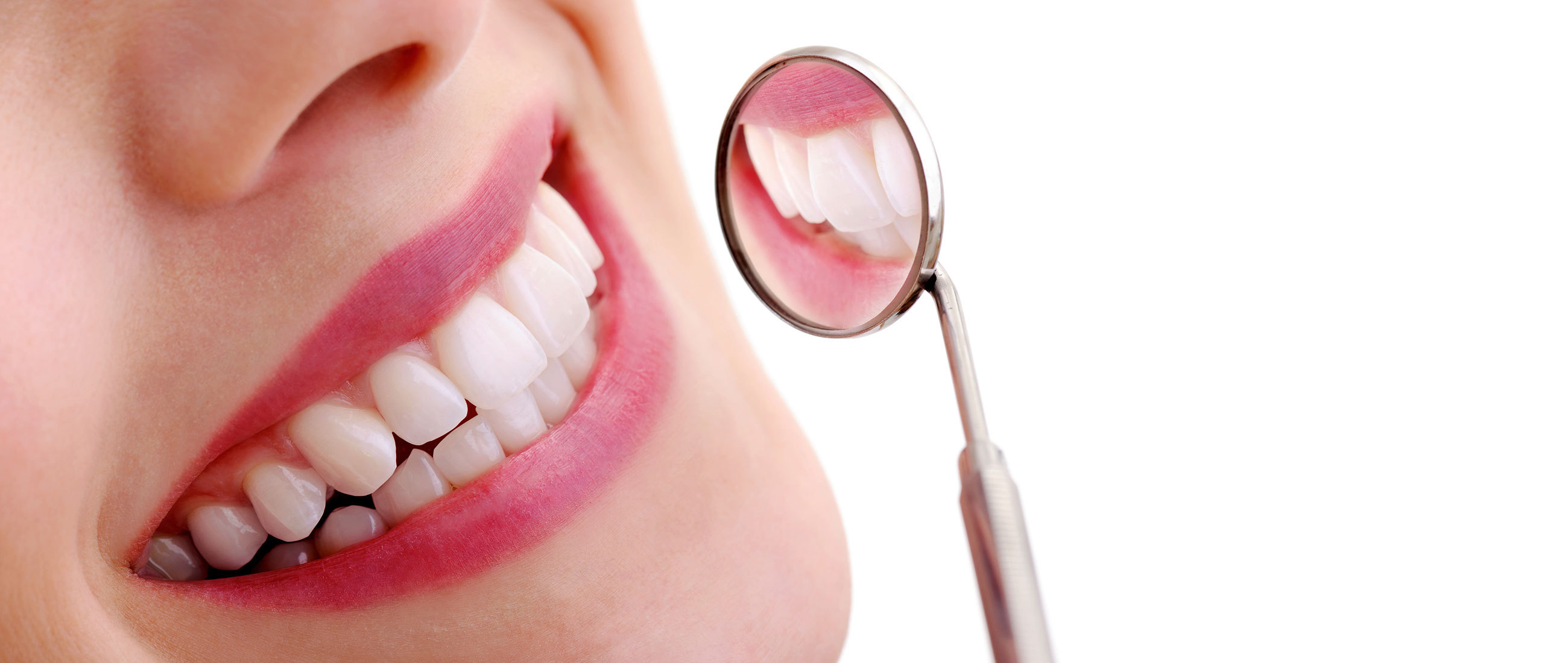 Dental Cleaning In Glendale 1