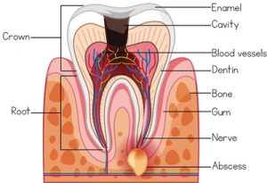 abscess in a tooth