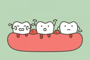 gums bleeding