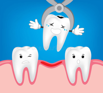 tooth extraction aftercare