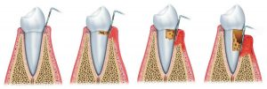 tooth mobility