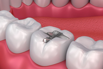 temporary tooth filling