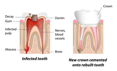 infected tooth vs rebuilt tooth