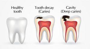 dental cavity