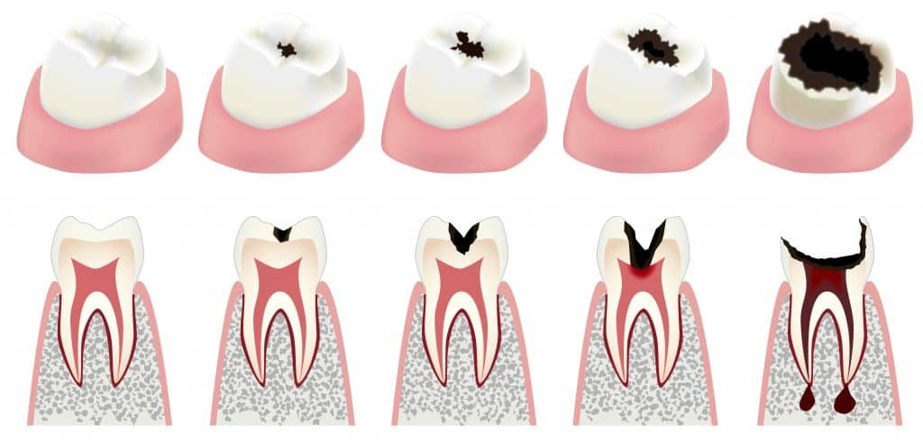 dental cavity