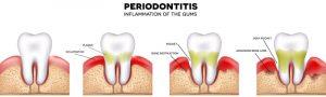 gum infection