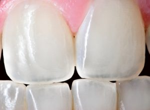 translucent teeth